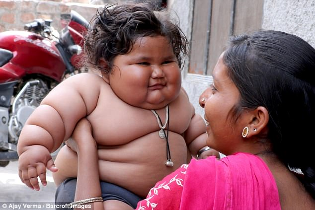 Восьмимесячная девочка из Индии весит, как 4-летний ребенок, но ее родители винят в этом Бога