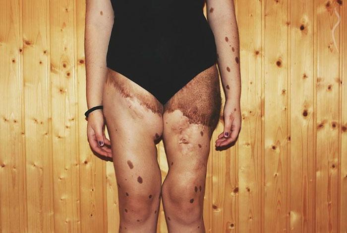 Над этой девушкой жестоко издевались из-за того, что у нее более 500 родинок